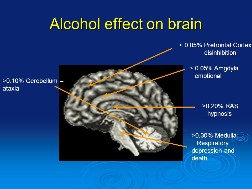 Alcohol effect on brain < 0.05% Prefrontal Cortex disinhibition > 0.05% Amgdyla emotional >0.20% RAS hypnosis >0.30% Medulla - Respiratory depression and death >0.10% Cerebellum – ataxia