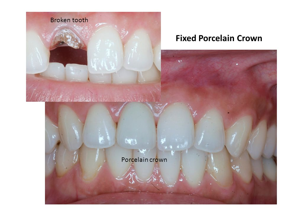 Fixed Porcelain Crown Broken tooth Porcelain crown