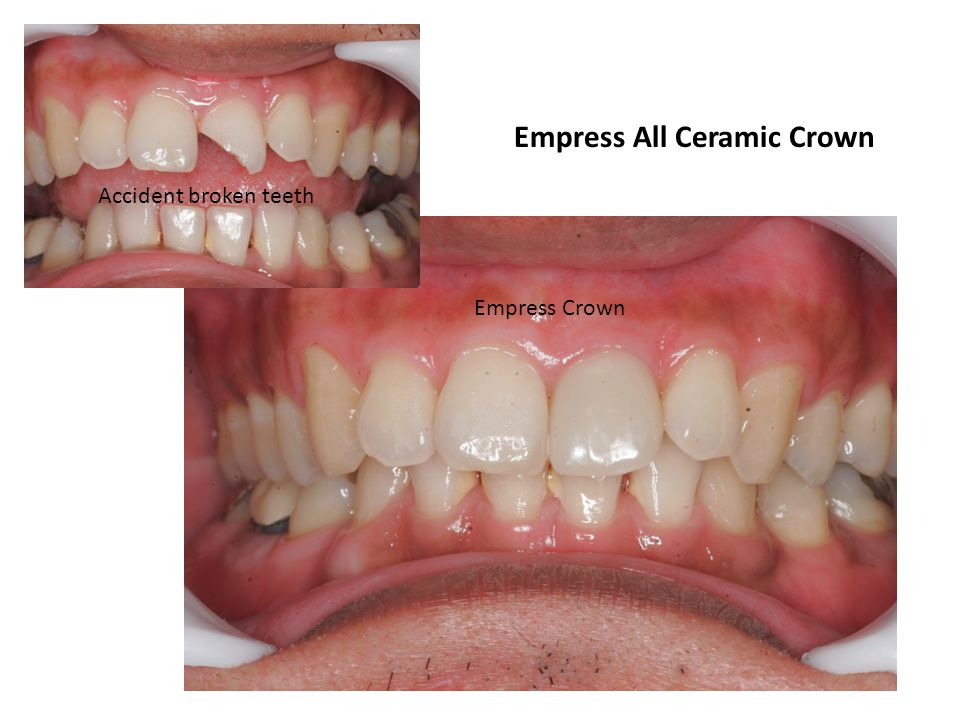 Empress All Ceramic Crown Accident broken teeth Empress Crown