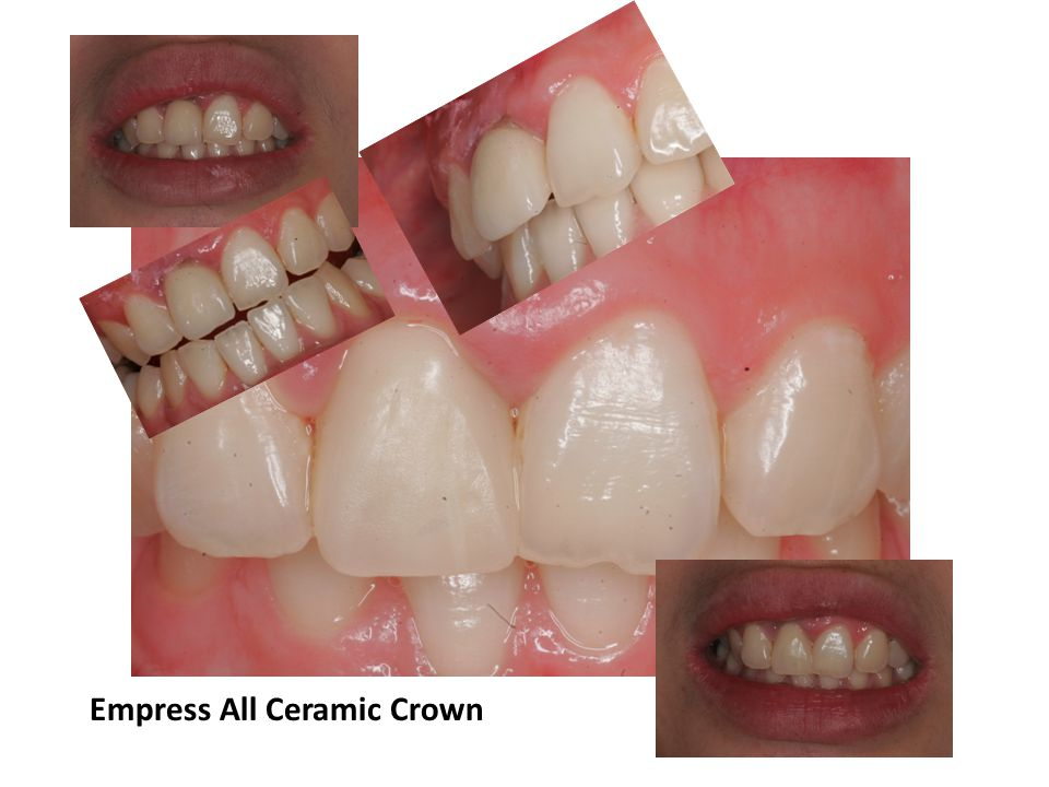 Empress All Ceramic Crown