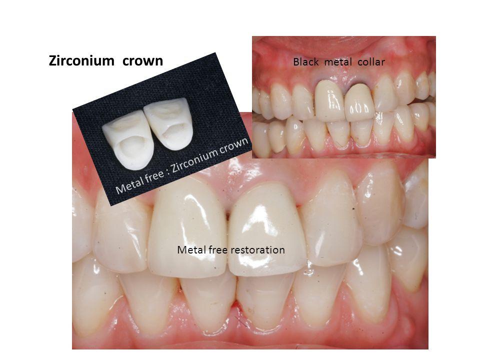 Zirconium crown Black metal collar Metal free : Zirconium crown Metal free restoration