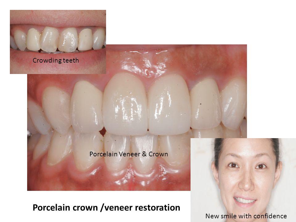 Porcelain crown /veneer restoration Crowding teeth Porcelain Veneer & Crown New smile with confidence