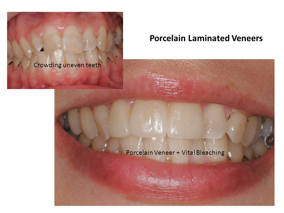 Porcelain Laminated Veneers Crowding uneven teeth Porcelain Veneer + Vital Bleaching