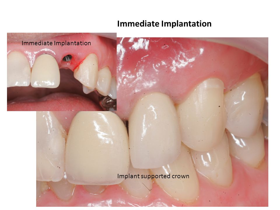 Immediate Implantation Implant supported crown