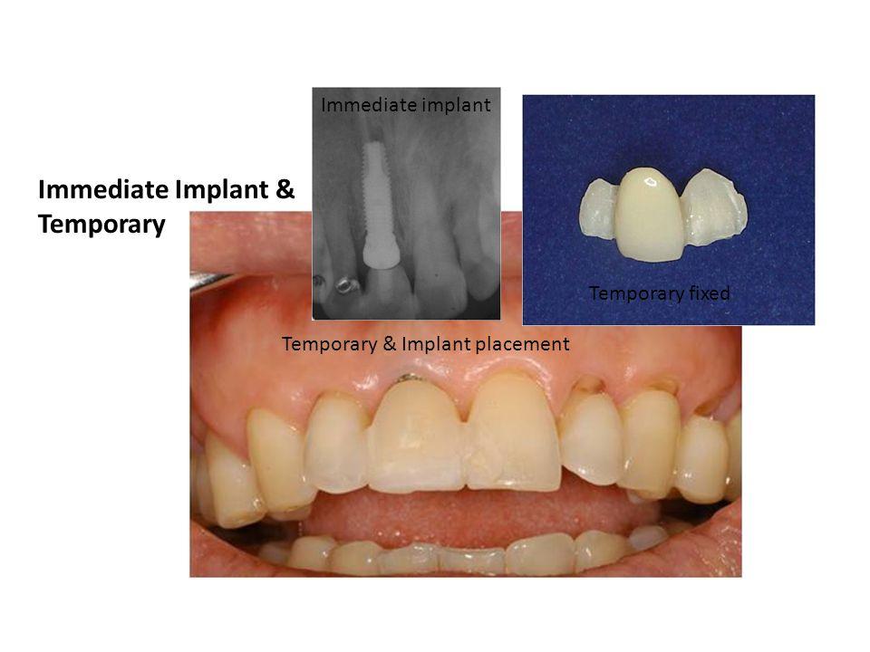 Immediate Implant & Temporary Immediate implant Temporary fixed Temporary & Implant placement
