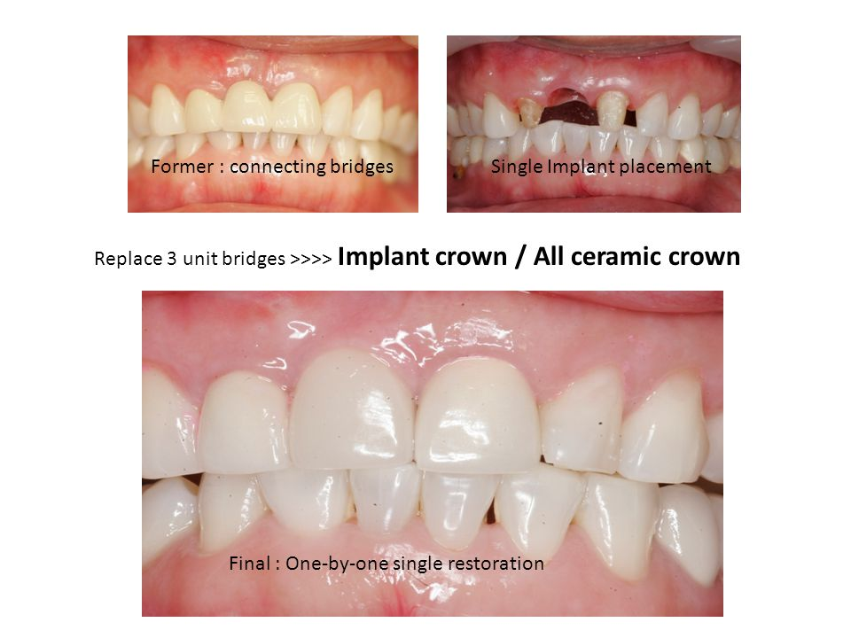 Former : connecting bridges Final : One-by-one single restoration Replace 3 unit bridges >>>> Implant crown / All ceramic crown Single Implant placement