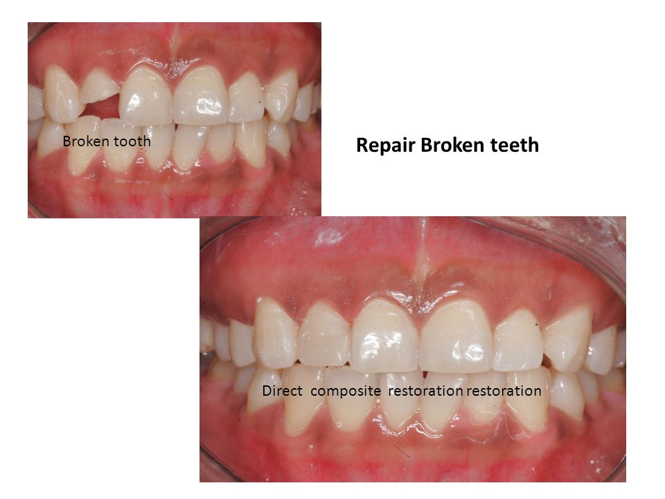 Repair Broken teeth Direct composite restoration restoration Broken tooth