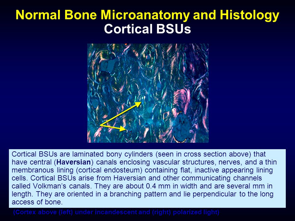 Normal Bone Microanatomy and Histology Cortical BSUs Cortical BSUs are laminated bony cylinders (seen in cross section above) that have central (Haver