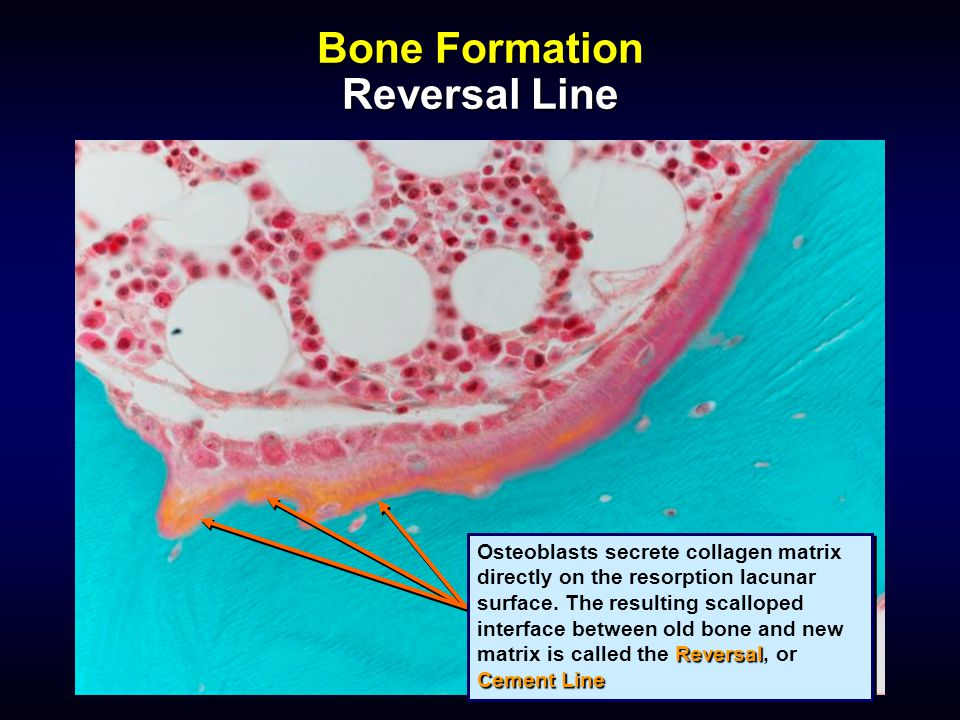 Bone Formation Reversal Line Reversal Cement Line Osteoblasts secrete collagen matrix directly on the resorption lacunar surface. The resulting scallo