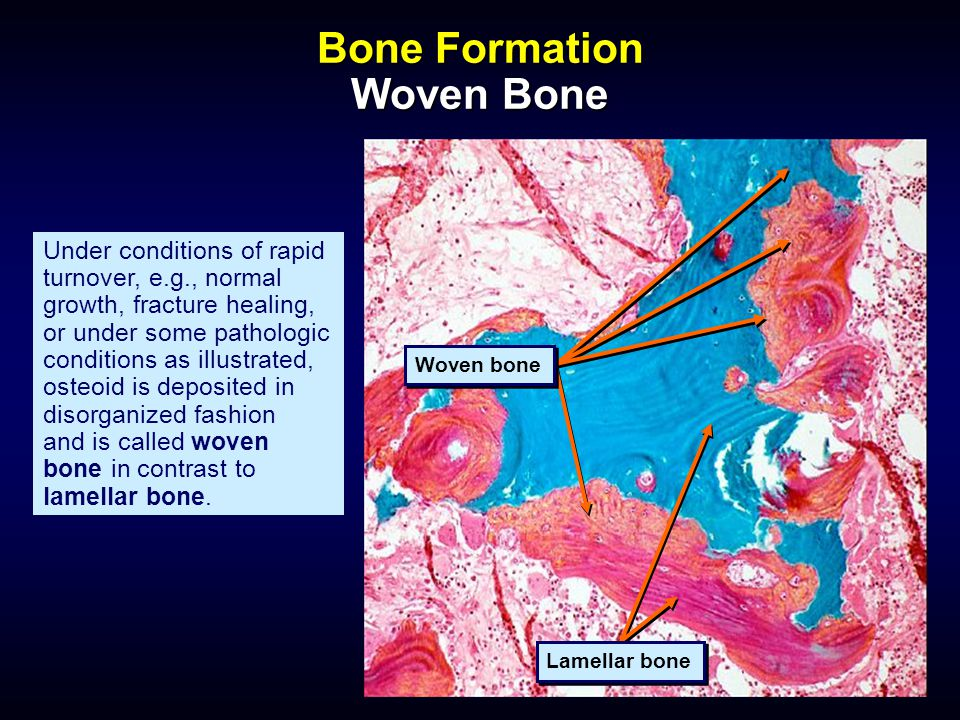 Bone Formation Woven Bone Under conditions of rapid turnover, e.g., normal growth, fracture healing, or under some pathologic conditions as illustrate