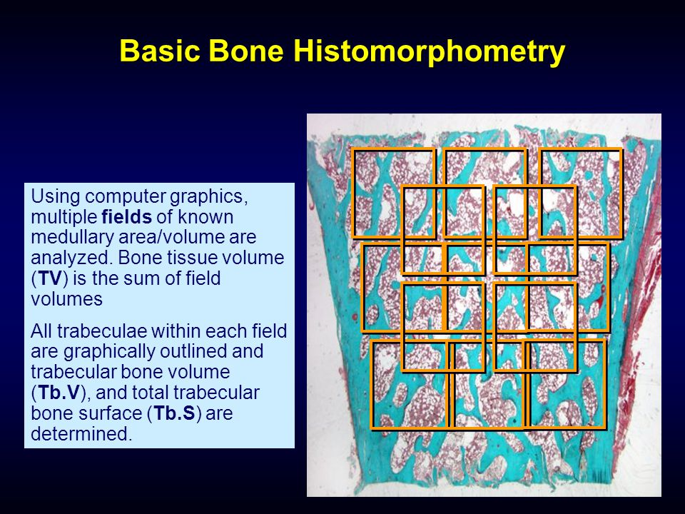 Basic Bone Histomorphometry Using computer graphics, multiple fields of known medullary area/volume are analyzed. Bone tissue volume (TV) is the sum o