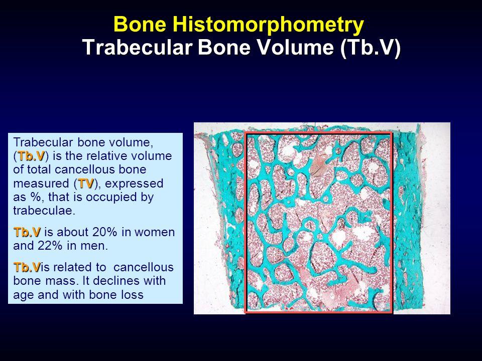 Bone Histomorphometry Trabecular Bone Volume (Tb.V) Tb.V TV Trabecular bone volume, (Tb.V) is the relative volume of total cancellous bone measured (T