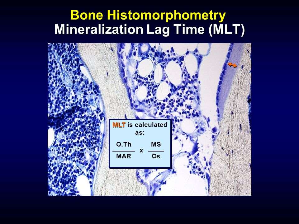 Bone Histomorphometry Mineralization Lag Time (MLT) MLT MLT is calculated as: O.Th MAR MS Os x