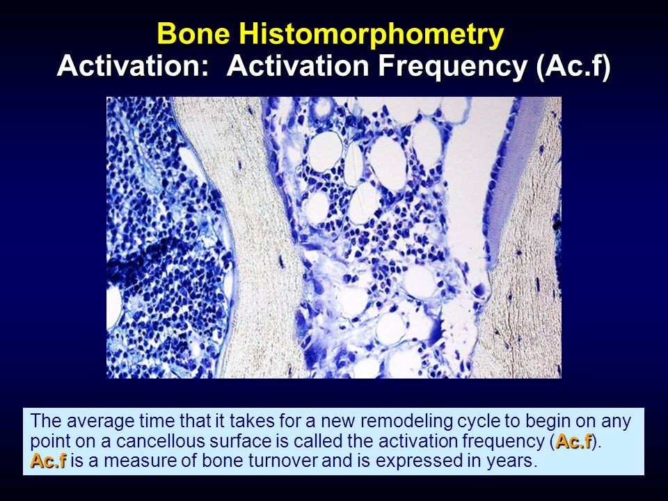 Bone Histomorphometry Activation: Activation Frequency (Ac.f) Ac.f Ac.f The average time that it takes for a new remodeling cycle to begin on any poin