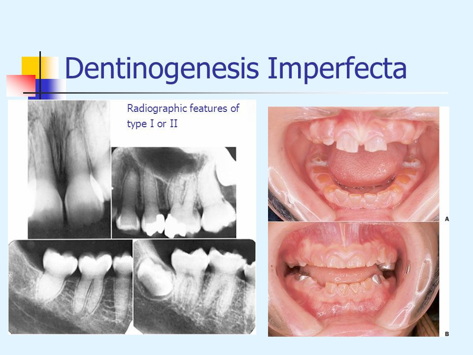Dentinogenesis Imperfecta Radiographic features of type I or II