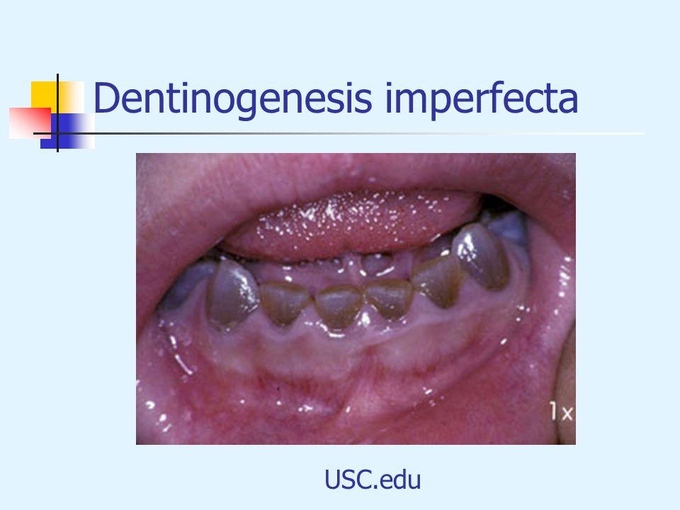 Dentinogenesis imperfecta USC.edu