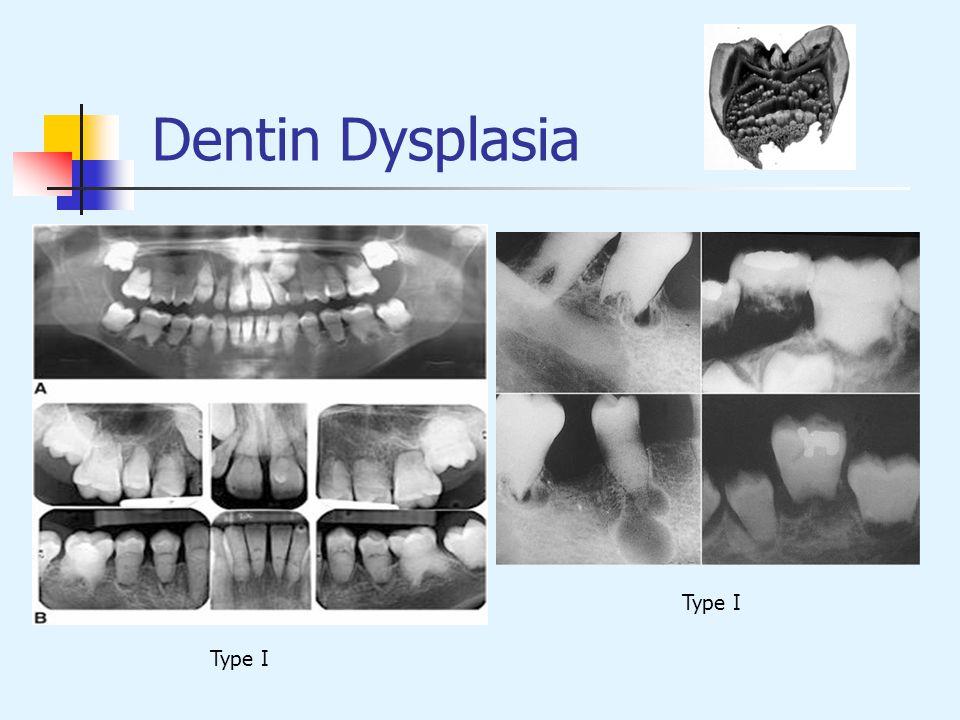 Dentin Dysplasia Type I
