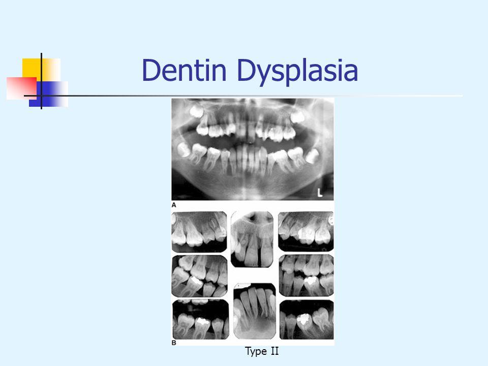 Dentin Dysplasia Type II