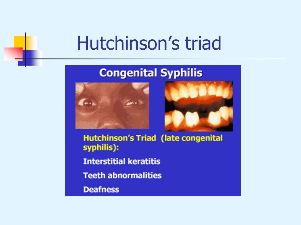 Hutchinsons triad