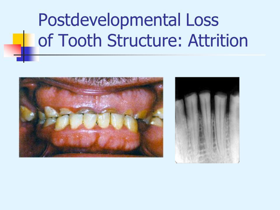 Postdevelopmental Loss of Tooth Structure: Attrition