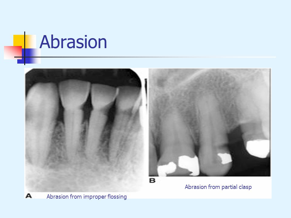Abrasion from improper flossing Abrasion from partial clasp