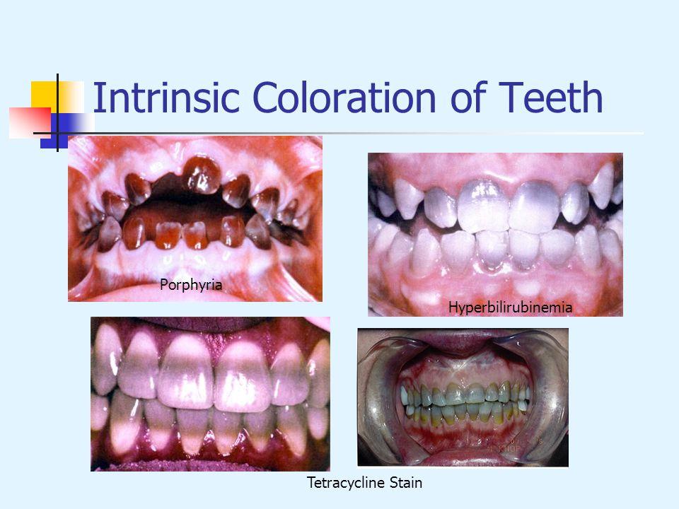 Intrinsic Coloration of Teeth Hyperbilirubinemia Tetracycline Stain Porphyria