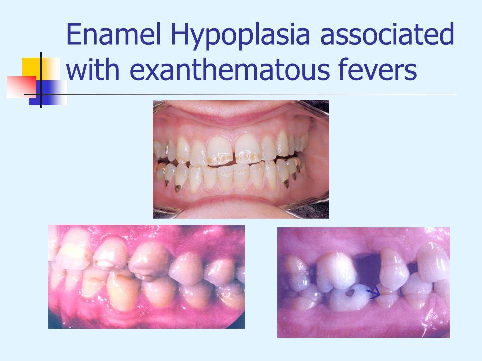 Enamel Hypoplasia associated with exanthematous fevers