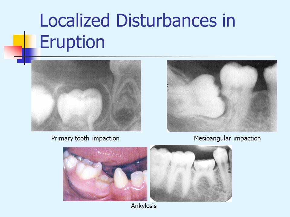 Localized Disturbances in Eruption Primary tooth impactionMesioangular impaction Ankylosis
