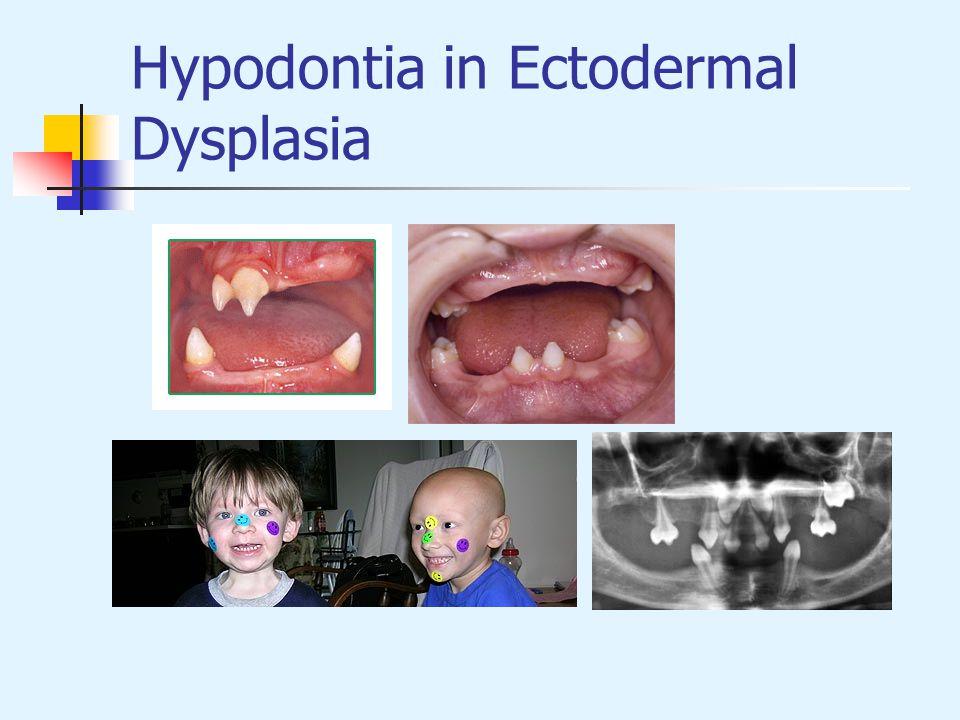 Hypodontia in Ectodermal Dysplasia
