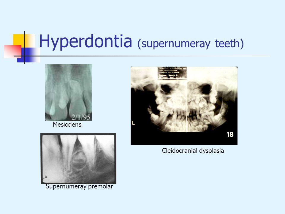 Hyperdontia (supernumeray teeth) Mesiodens Cleidocranial dysplasia Supernumeray premolar