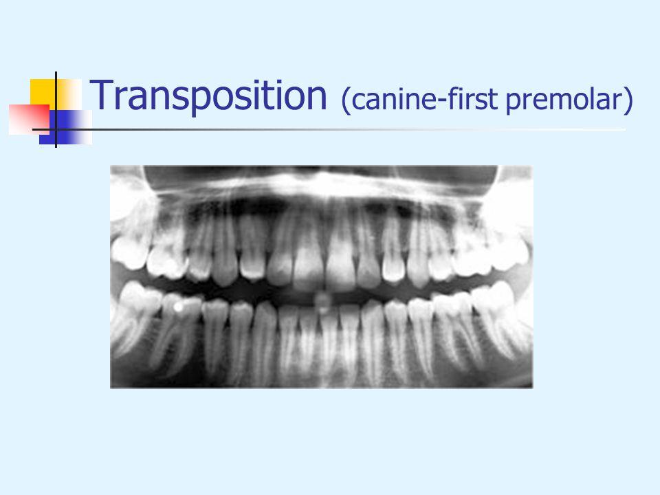 Transposition (canine-first premolar)