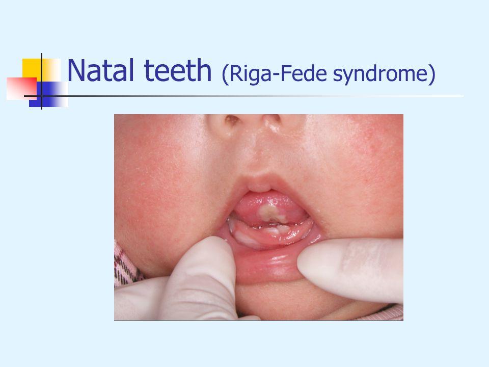 Natal teeth (Riga-Fede syndrome)