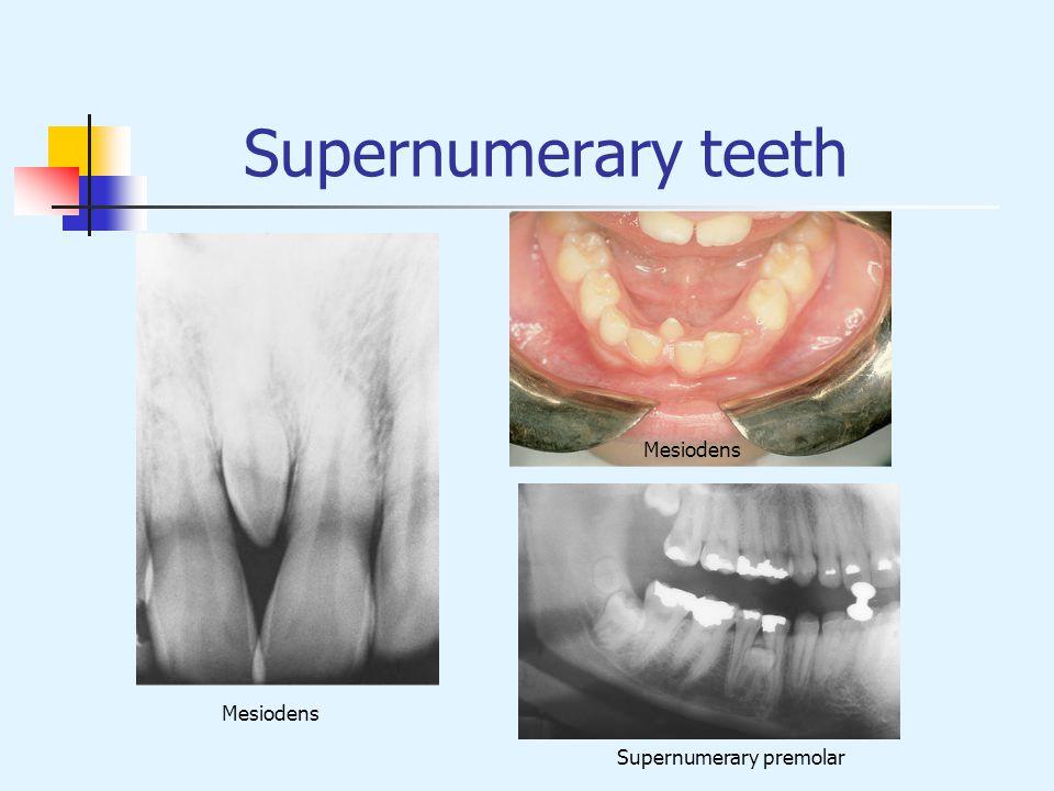 Supernumerary teeth Mesiodens Supernumerary premolar Mesiodens