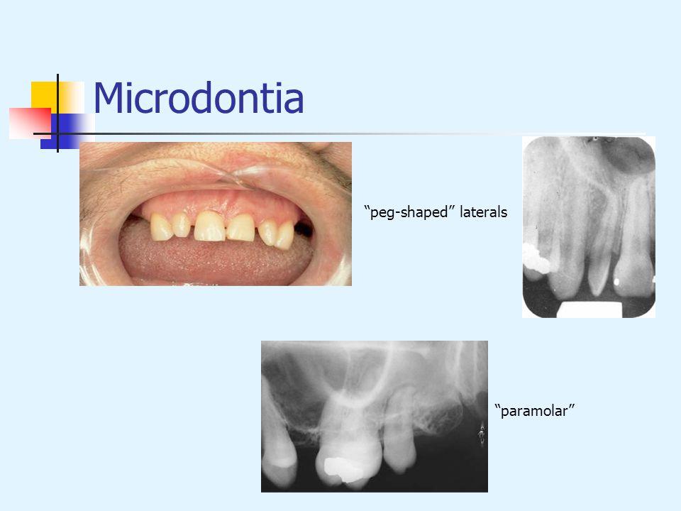 Microdontia peg-shaped laterals paramolar