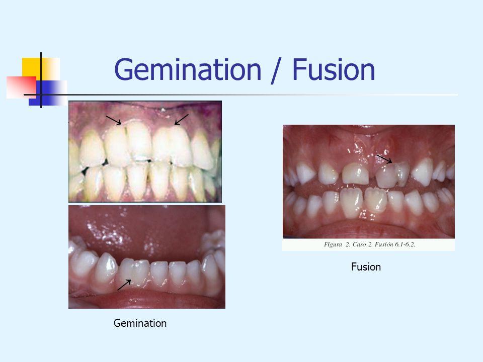 Gemination / Fusion Gemination Fusion