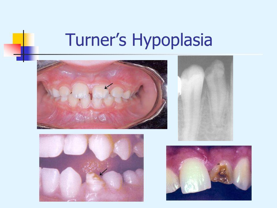 Turners Hypoplasia