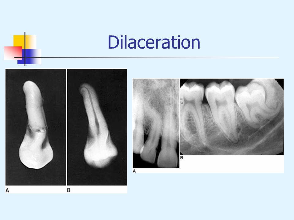 Dilaceration