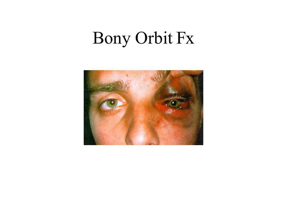 Bony Orbit Fx