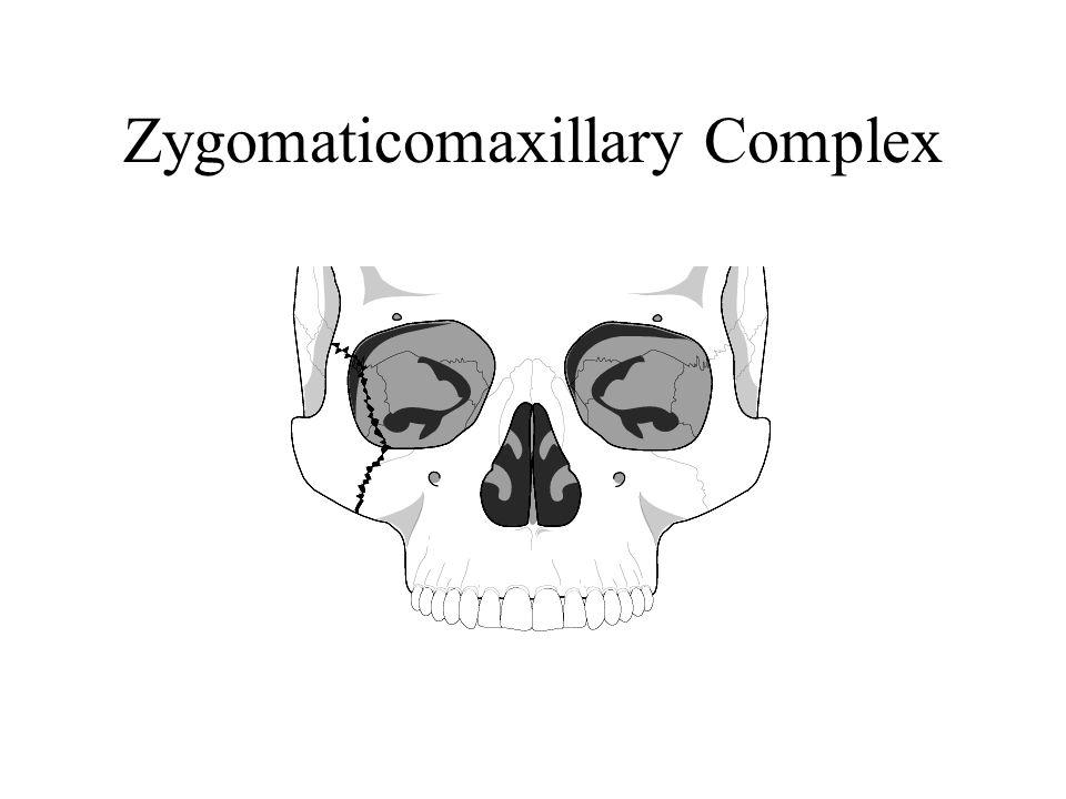Zygomaticomaxillary Complex