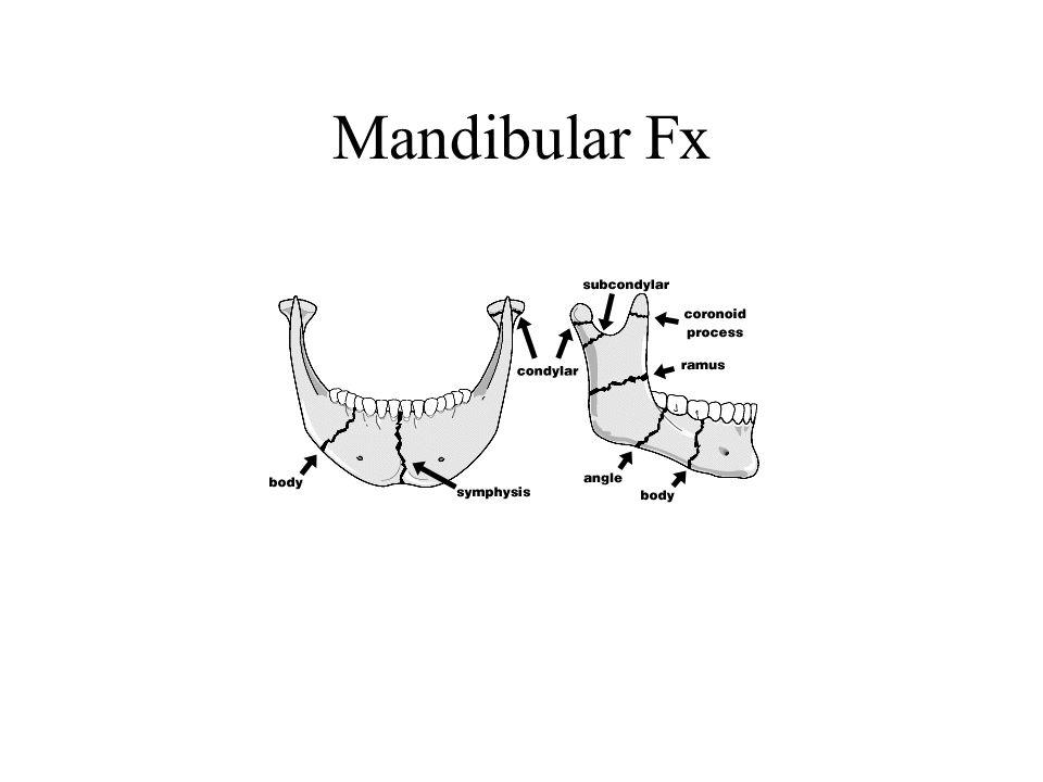 Mandibular Fx
