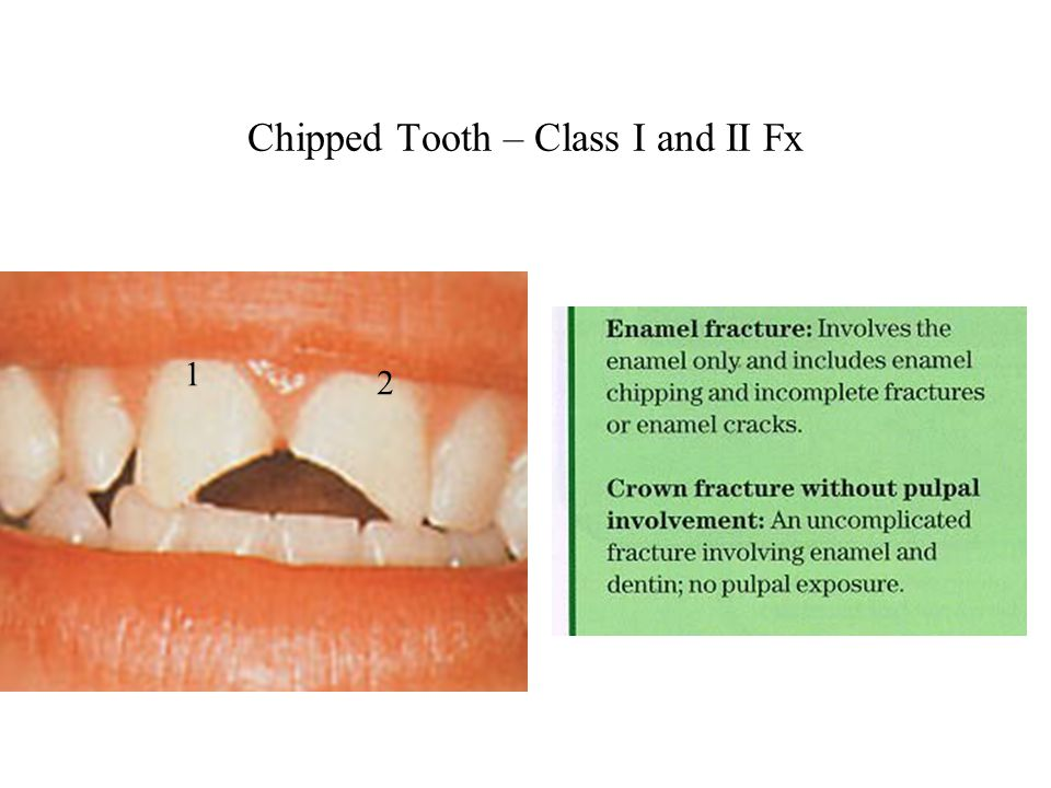 Chipped Tooth – Class I and II Fx 1 2