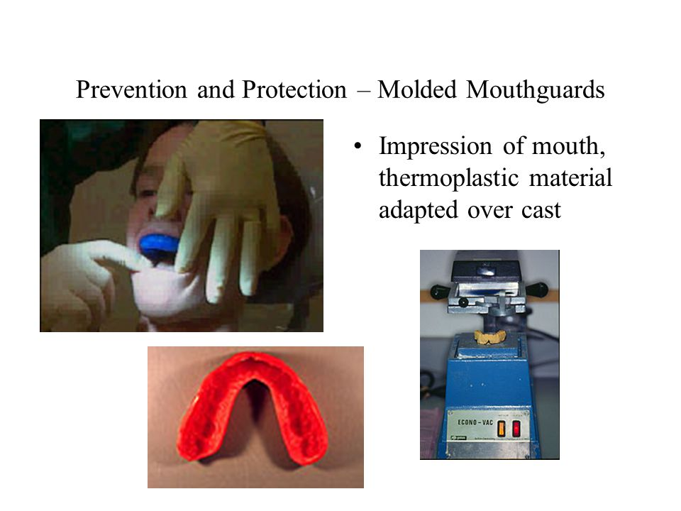 Prevention and Protection – Molded Mouthguards Impression of mouth, thermoplastic material adapted over cast