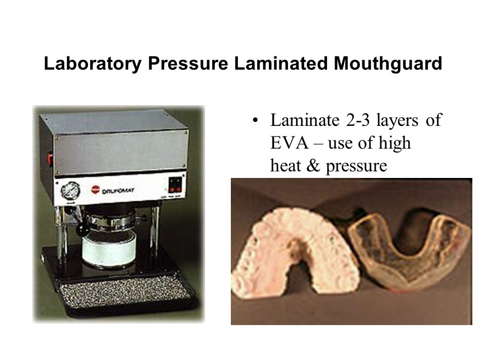 Laboratory Pressure Laminated Mouthguard Laminate 2-3 layers of EVA – use of high heat & pressure