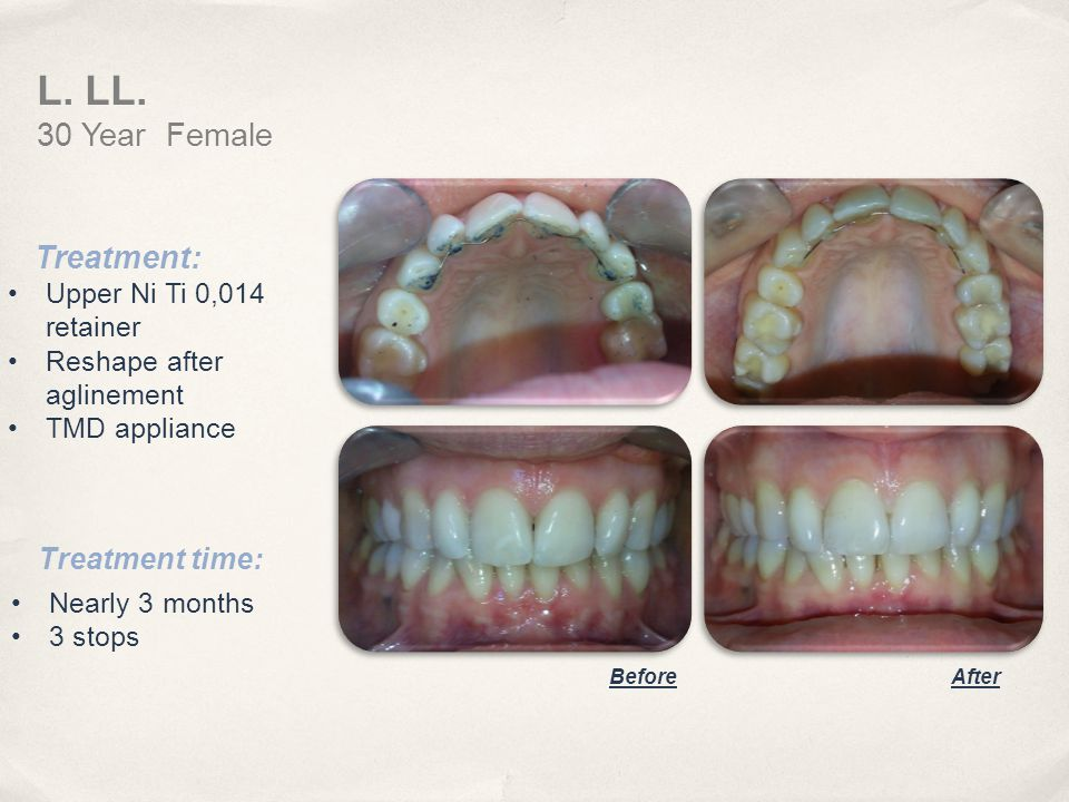 Treatment: Upper Ni Ti 0,014 retainer Reshape after aglinement TMD appliance Treatment time: Nearly 3 months 3 stops L. LL. 30 Year Female BeforeAfter