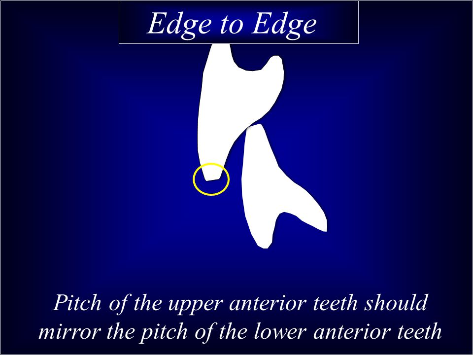 Pitch of the upper anterior teeth should mirror the pitch of the lower anterior teeth Edge to Edge