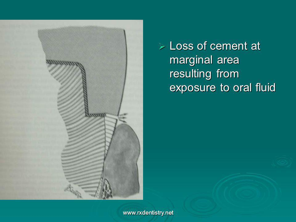 Loss of cement at marginal area resulting from exposure to oral fluid Loss of cement at marginal area resulting from exposure to oral fluid www.rxdent