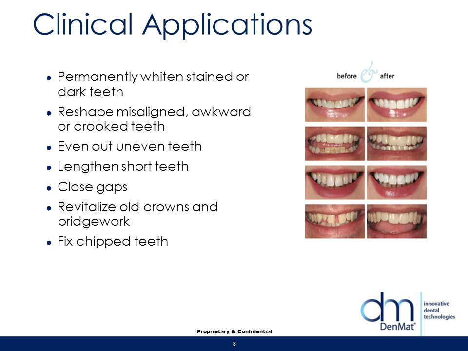 8 Proprietary & Confidential Clinical Applications Permanently whiten stained or dark teeth Reshape misaligned, awkward or crooked teeth Even out unev
