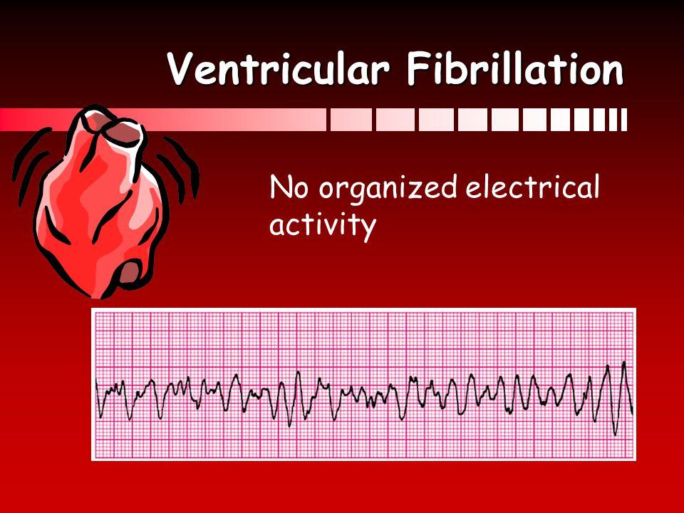 Ventricular Fibrillation Acls Ventricular Fibrillation no