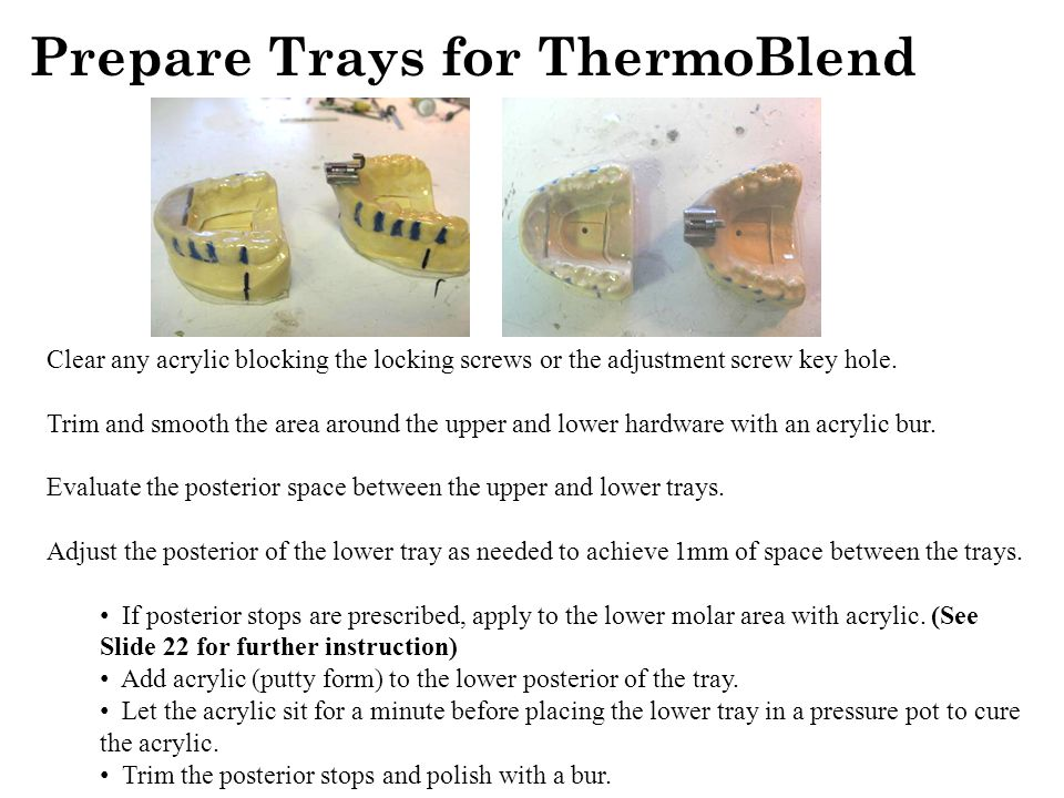 Prepare Trays for ThermoBlend Clear any acrylic blocking the locking screws or the adjustment screw key hole.