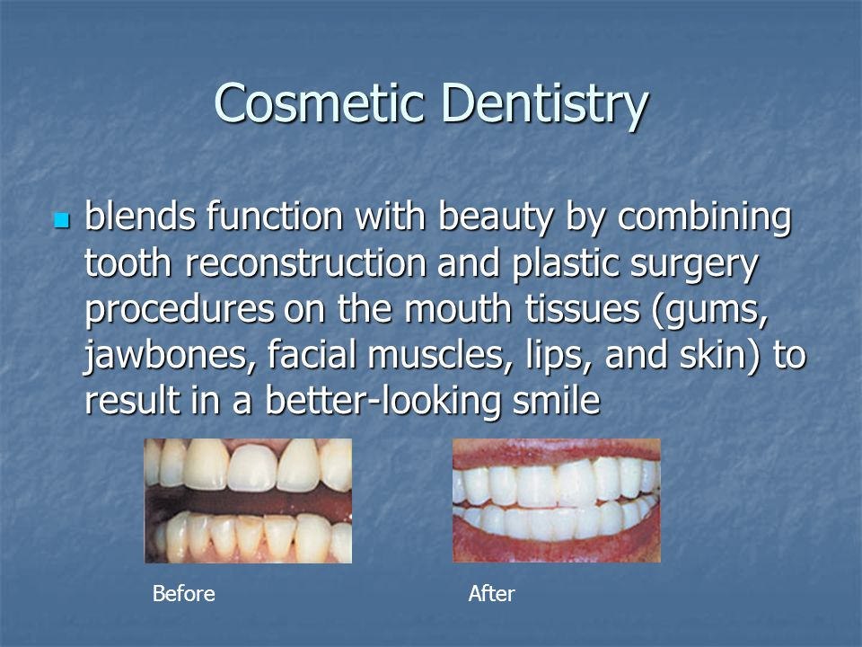 Cosmetic Dentistry blends function with beauty by combining tooth reconstruction and plastic surgery procedures on the mouth tissues (gums, jawbones,